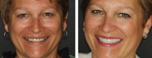 Old crowns and bite issues had caused Susan's porcelain to wear away and show the metal core below. Dr. Stonisch was able to lengthen her teeth by removing gum on both upper and lower and replace the crowns giving her a beautiful new smile!