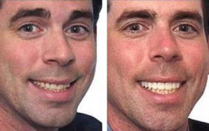 Months before his wedding, Jim was feeling the need for a smile lift to look and feel his best for that big day. Old worn bondings and chipping teeth were a constant problem. In placing upper veneers, we were able to correct Jim's ill bite as well as complete his Extreme Smile Makeover.